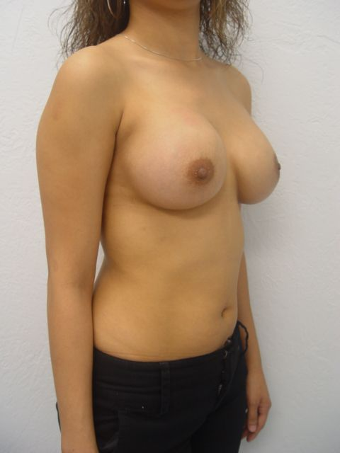 breast augmentation options