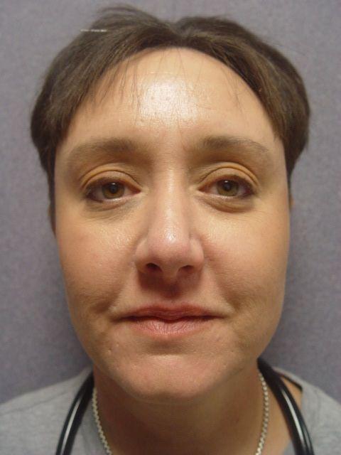 Rhinoplasty services