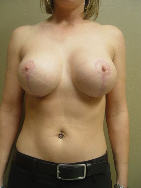 breast lift options