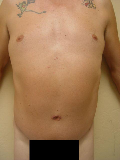 male abonminoplasty services